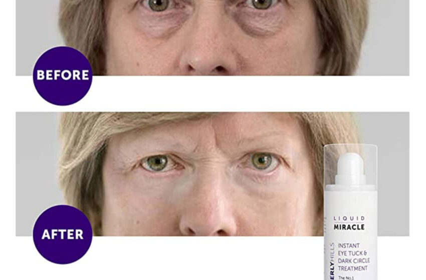 This Immediate Eyelift Serum Could Inaugurate Working in Actual 90 Seconds